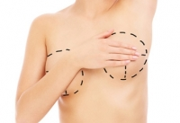 Immediate Large-Volume Grafting of Autologous Fat to the Breast Following Implant Removal