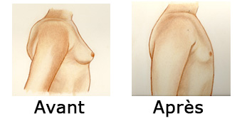 gynecomastie comparaison
