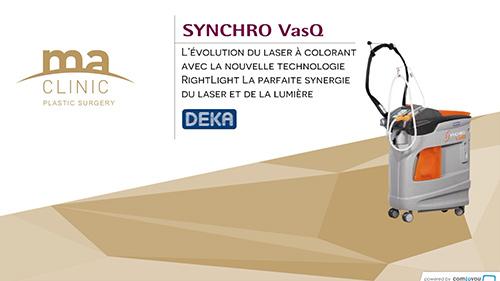 Synchro vasq, la nouvelle génération de lasers