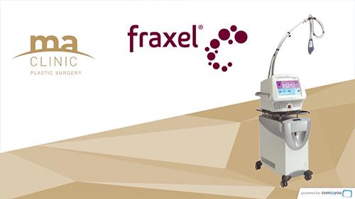 Traitement des tâches et ridules avec Fraxel