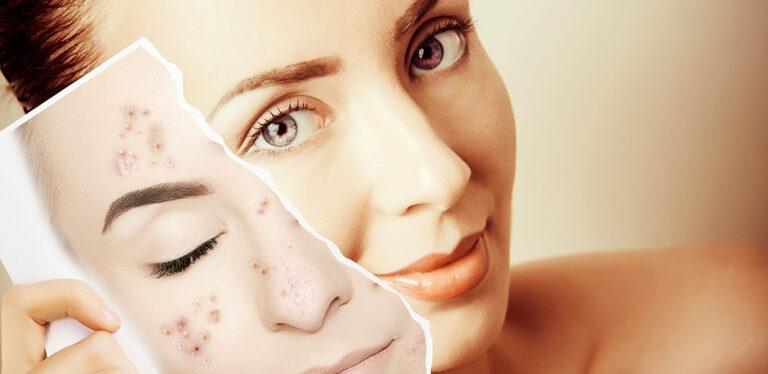 Traitement des cicatrices d'acné à Bruxelles - Ma Clinic
